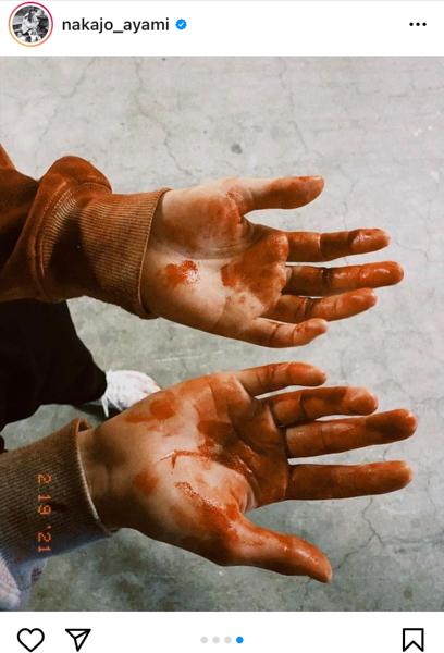 中条あやみ、「君と世界が終わる日に」撮影中の血塗れショット公開「season2楽しんで頂けてますか??」